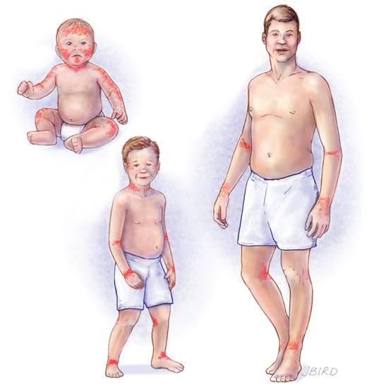 dermatitis-atopica-diagrama